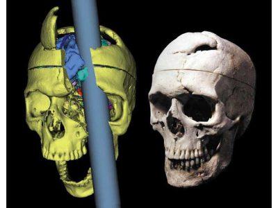 Przypadek Phineasa Gage'a - przełom w medycynie